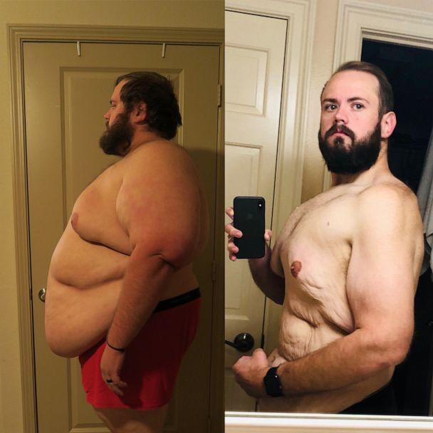 PHOTO: Christopher Hasty is now down over 250 pounds and his goal is to hit 199 pounds. (Courtesy Christopher Hasty)