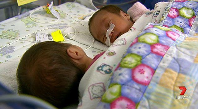 Jenna and Jennise were twisted tightly together by their umbilical cords. Photo: 7 News