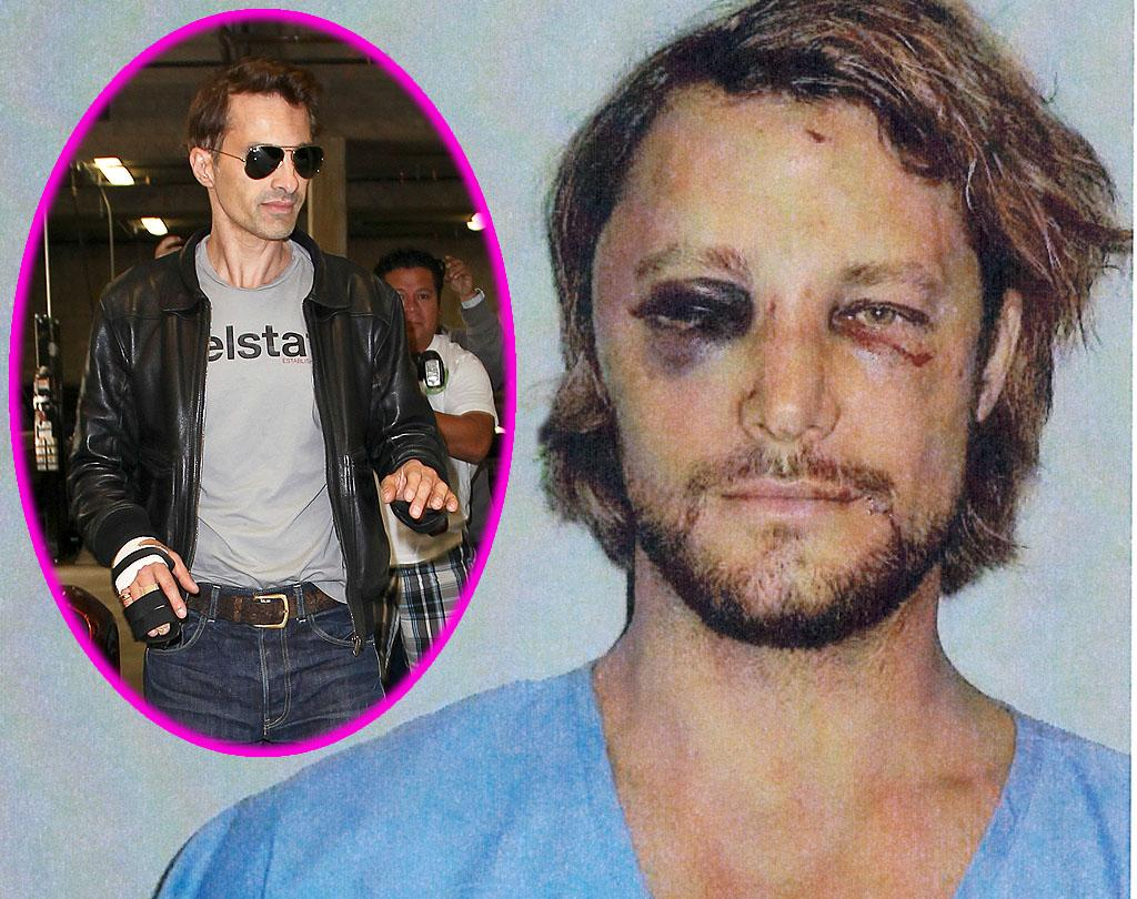 These are the brutal injuries Gabriel Aubry claims he suffered at the hands of Halle Berry's fiance Olivier Martinez. Aubry claims he was attacked by Martinez, a French actor, when he turned his daughter Nahla to Halle's home in Los Angeles on November 22, 2012 - Thanksgiving holiday in the United States. The photos of Aubry's black eyes and bloodstained face were included in a restraining order the model filed against Martinez at Los Angeles Superior Court.