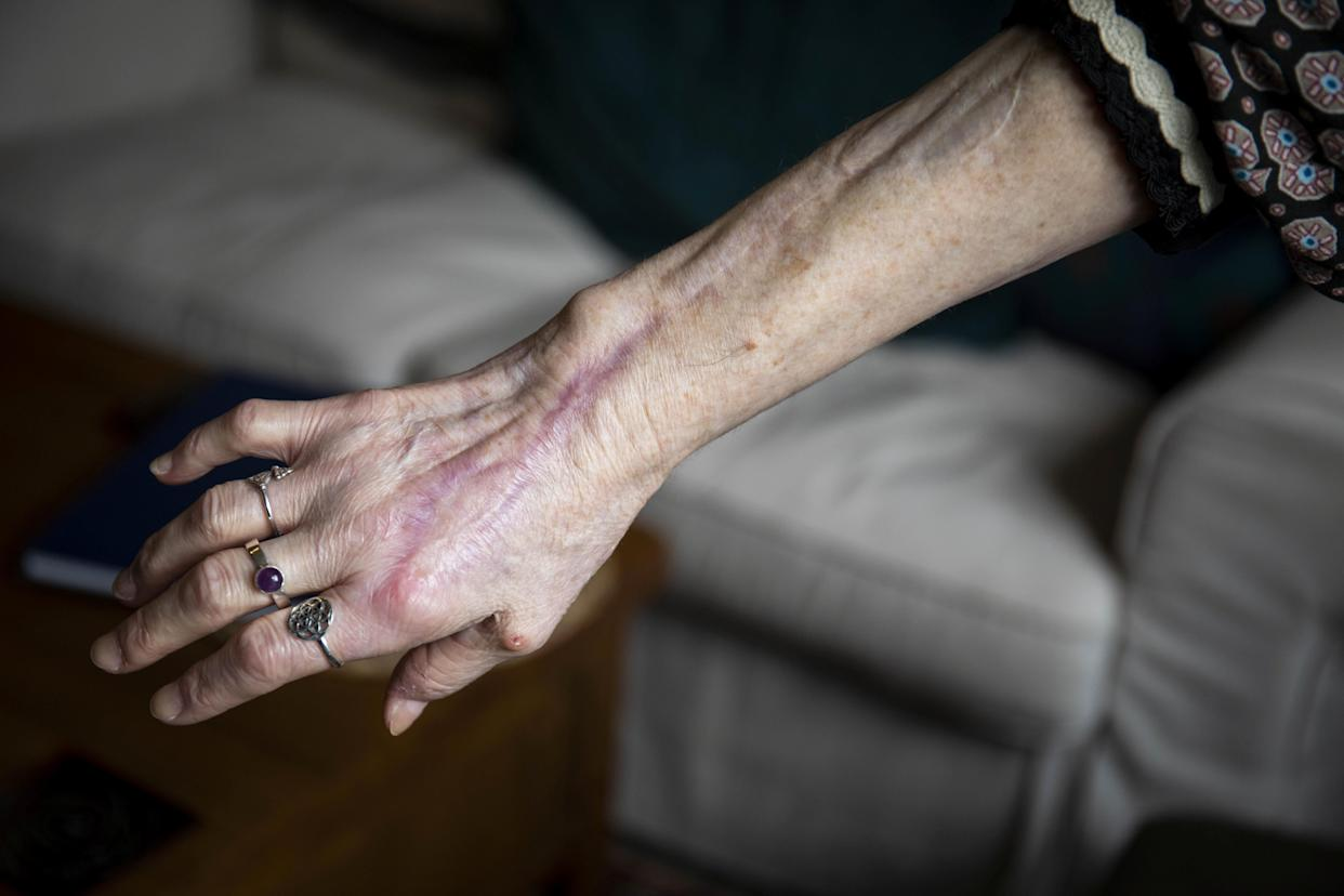 Shirley Hair shows the arm which was scratched by her cat last year (Picture: SWNS)