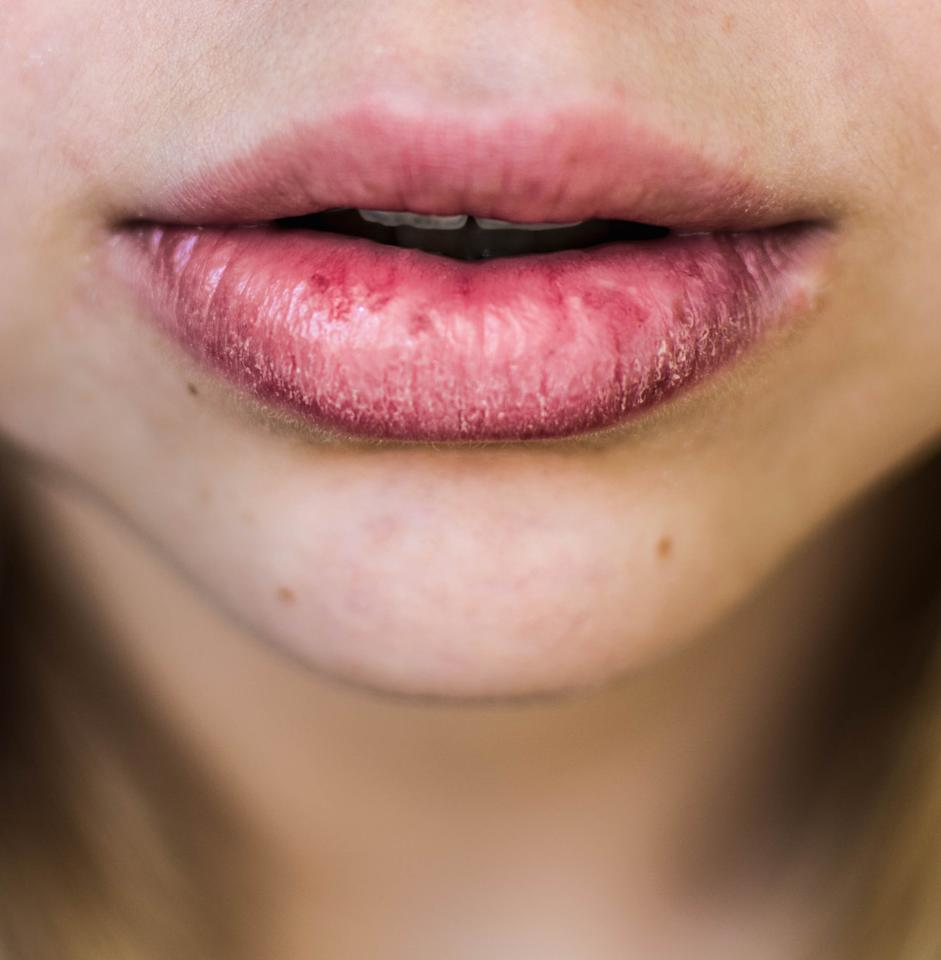 """<p><a href=""""http://www.ncbi.nlm.nih.gov/pmc/articles/PMC3129960/"""" target=""""_blank"""">Mouth-breathing</a> may make your saliva evaporate, which can dry out your mouth and reduce your mouth's ability to rinse away food particles. Some people breathe through their mouths while they sleep, but many people often do it during exercise as well, says <a href=""""http://my.clevelandclinic.org/staff_directory/staff_display?doctorid=17112"""" target=""""_blank"""">Hadie Rifai</a>, a dentist at the Cleveland Clinic . (In fact, dental hygiene in athletes is currently being studied by experts: One 2015 study by researchers from Germany found that the more time people spent in training, the more likely they were to have cavities. The scientists also speculated that the <a href=""""http://www.ncbi.nlm.nih.gov/pubmed/24917276"""" target=""""_blank"""">reduced saliva flow</a> during exercise may play a role.) That's not a reason to stop exercising, of course. Just make sure you stay hydrated during a workout and replenish your fluids afterwards, Dr. Rifai says.</p> <p> <b>RELATED: <a href=""""https://www.health.com/oral-health/bad-breath-age"""">Why Your Breath Might Start to Smell Worse as You Get Older</a></b></p>"""