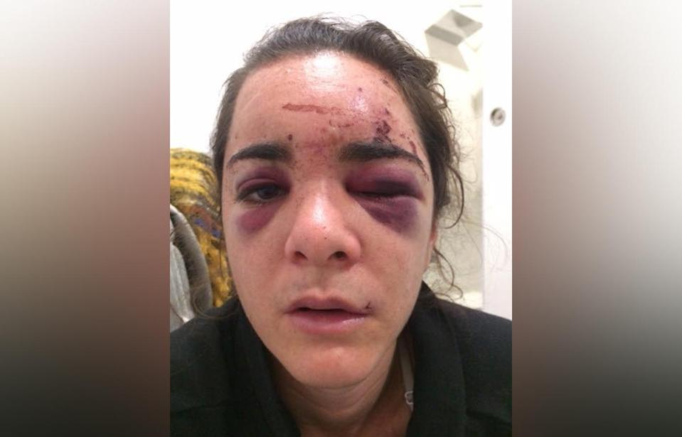 Rape victim Andrea Sicignano shared pictures of her bruised face and her story to raise awareness of the reality of sexual assault. Source: Andrea Sicignano / Facebook