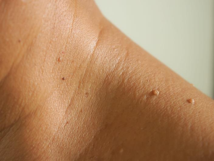 Skin tags most commonly appear in places like the neck, eyelids, or armpits.