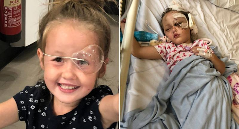 Little Tillie suffered injuries to her head and face (SWNS)