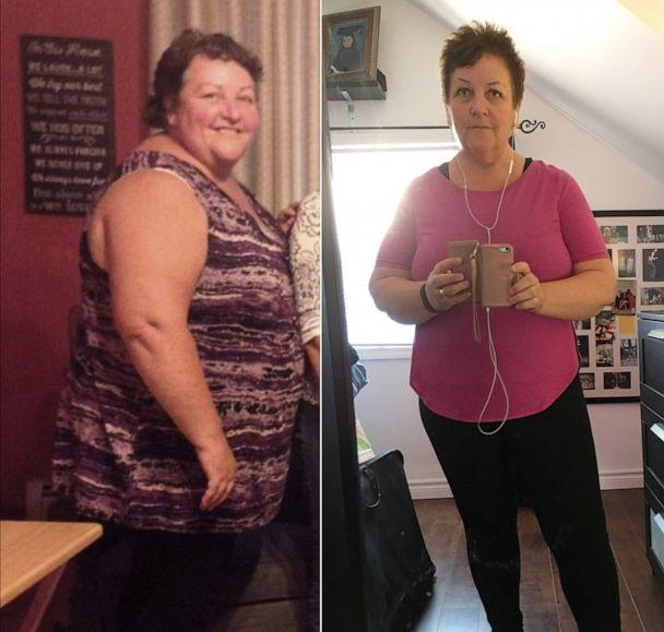 PHOTO: Lindy Cellucci, a 60-year-old retired teacher, lost 150 pounds. (Courtesy Lindy Cellucci)