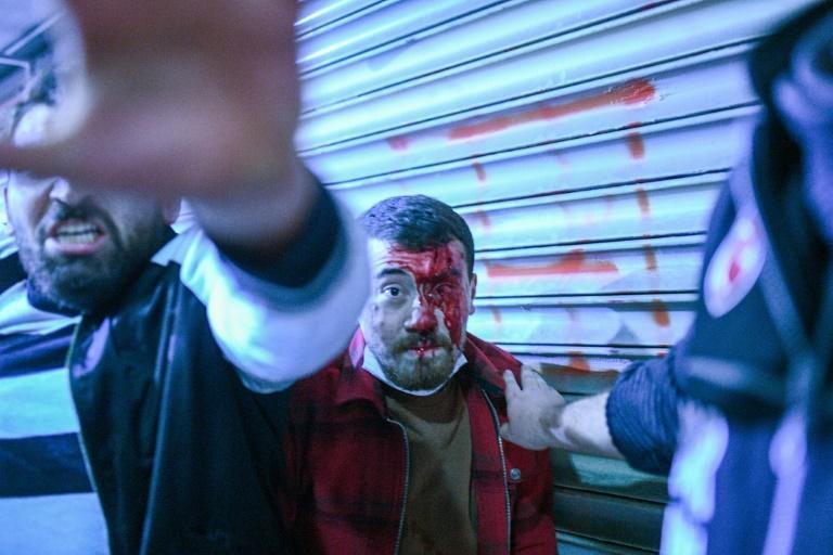 An injured Turkish man stares at a policeman during the latest in a wave of anti-government demonstrations