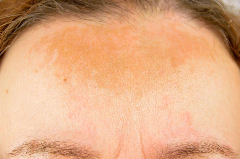 Pigmentation is caused by exposure to the sun [Photo: Getty]