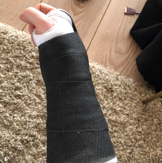 "<p>Poor Ed Sheeran — and his fans! ""A visit to my doctors confirmed fractures in my right wrist and left elbow that will leave me unable to perform live concerts for the immediate future,"" a post to his followers read, after the singer announced earlier he had ""a bit of a bicycle accident."" He continued, ""Sadly, this means that the following shows will not be able to go ahead as planned: Taipei, Osaka, Seoul, Tokyo and Hong Kong. I'm waiting to see how the healing progresses before we have to decide on shows beyond that. Please stay tuned for more details."" (Photo: <a href=""https://www.instagram.com/p/BaXdjITFRlA/?taken-by=teddysphotos"" rel=""nofollow noopener"" target=""_blank"" data-ylk=""slk:Ed Sheeran via Instagram"" class=""link rapid-noclick-resp"">Ed Sheeran via Instagram</a>) </p>"