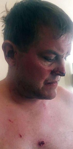 PHOTO: Scott Hapgood shows injuries his family says he sustained trying to protect him his family during an attack at a hotel in Anguilla. (Evan Nierman)