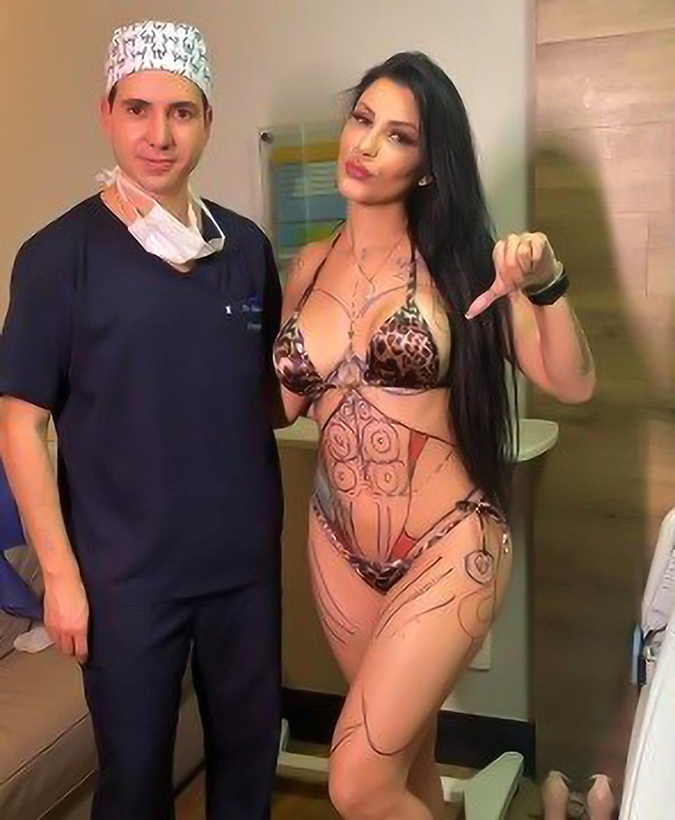 Jenny Miranda and a doctor with her body mapped out for surgery