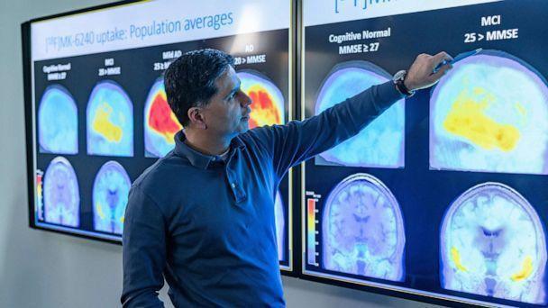 PHOTO: A man points to images of the brain in a handout photo released by Biogen in connection with the approval of their Alzheimer's medication Aduhelm, in Cambridge, Mass., June 8, 2021. (David White/Biogen/EPA via Shutterstock, FILE)