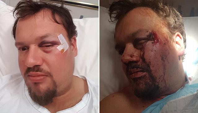 Jesse Lee claims he was bashed with a baseball bat at a jetty in Rockingham. Source: Facebook/ Jesse Lee