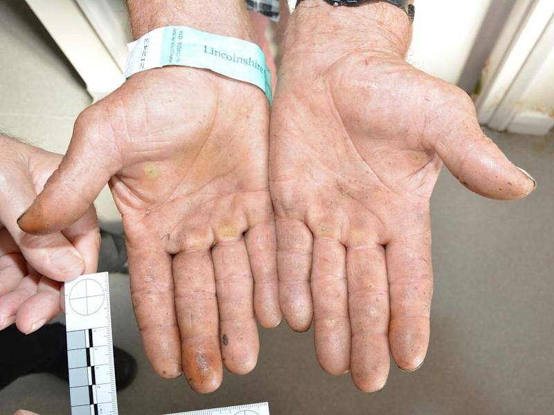The hands of one of the Rooney family's victims (Lincolnshire Police)