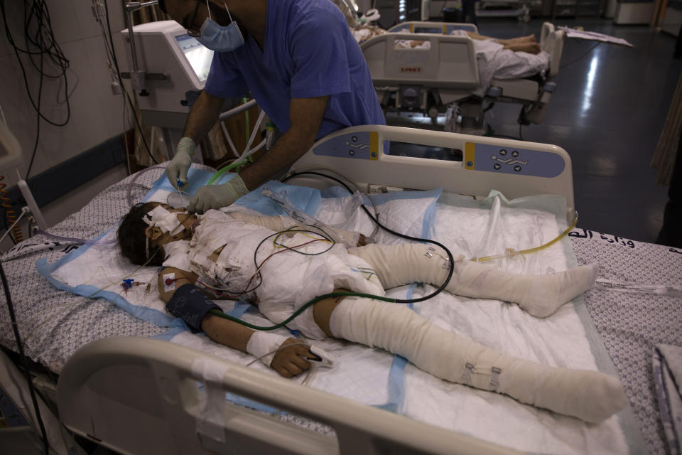 A Palestinian medic gives treatment to a wounded girl in the ICU of the Shifa hospital, Thursday, May 13, 2021, in Gaza City. She was injured by a May 12 Israeli strike that hit her family house. Just weeks ago, the Gaza Strip's feeble health care system was struggling with a runaway surge of coronavirus cases. Now doctors across the crowded coastal enclave are trying to keep up with a very different crisis: blast and shrapnel wounds, cuts and amputations. (AP Photo/Khalil Hamra)