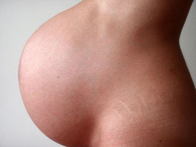Itching During Pregnancy