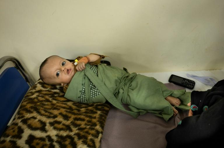Seven-month-old boy Bilal was born prematurely with a cleft lip and suffered from pneumonia and acute malnutrition when his mother brought him to hospital