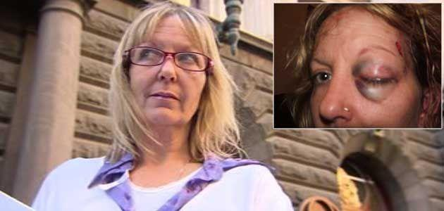 Victim: Jeannie Blackburn. (Inset image) Jeannie's face after one of Paul McCuskey's attacks. Photo: Supplied