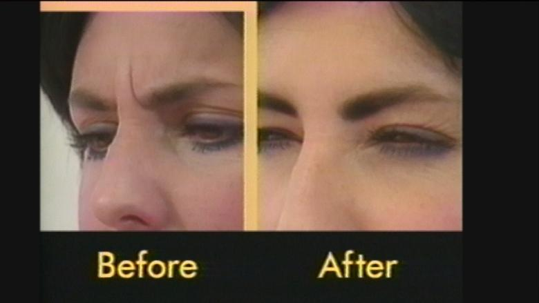 30 years ago, this Vancouver doctor pioneered use of Botox for cosmetic purposes
