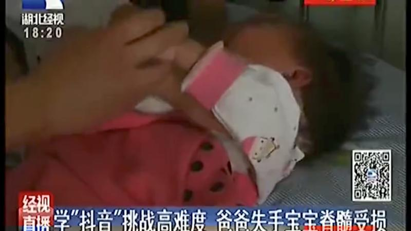 Chinese girl, 2, severely injured after father copies online backflip stunt