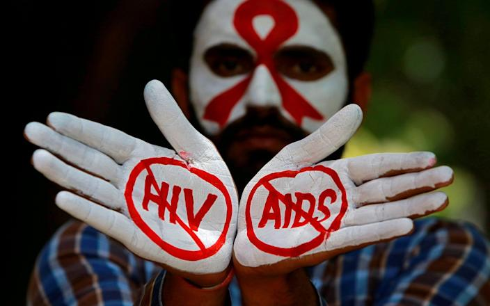A cure for HIV has so far eluded researchers - Ajay Verma/Reuters