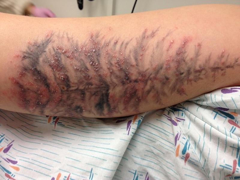 In this undated photo provided by the University of Washington, the arm of a Washington State woman is shown after developing an infection earlier this year after receiving a tattoo. As more people get tattoos, health officials are seeing more cases of a nasty skin infection blamed on the ink. In the largest outbreak reported, 19 people in Rochester, N.Y., recently ended up with bubbly rashes over their new tattoos. Cases also occurred in Colorado, Iowa and Washington States this year, health officials say. All together, the four states had 22 lab-confirmed tattoo-related infections and more than 30 suspected additional cases. (AP Photo/University of Washington, Dr. Andrea Kalus)