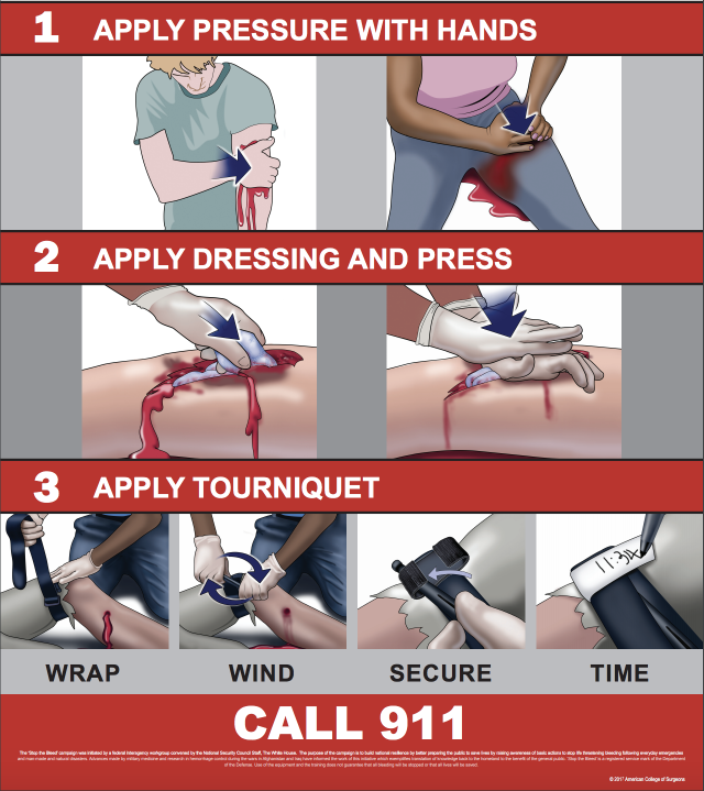 A Stop the Bleed poster. (Image: American College of Surgeons)