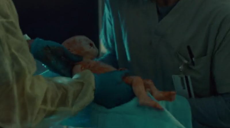 The birth of a baby without a nose