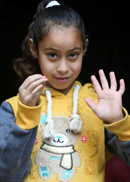 Palestinian refugee Asil Abu Ayada shows off her new prosthetic hand from the lab which produces limbs for between $20 and $50, a fraction of the cost of conventional devices