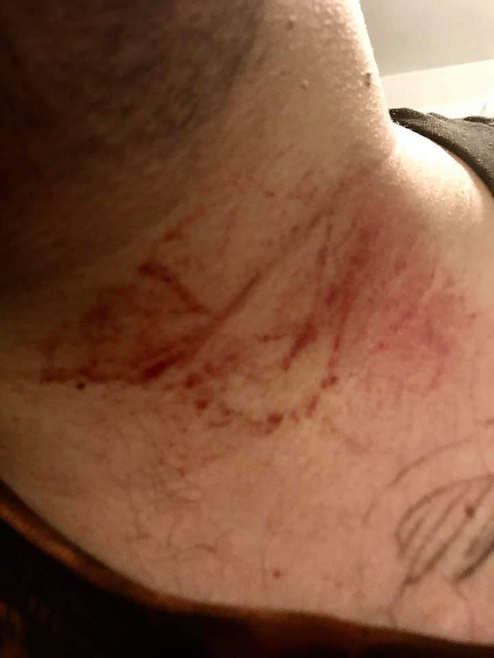 Mr Lambden received marks to this throat in the attack (Picture: Matthew Lambden/Facebook)