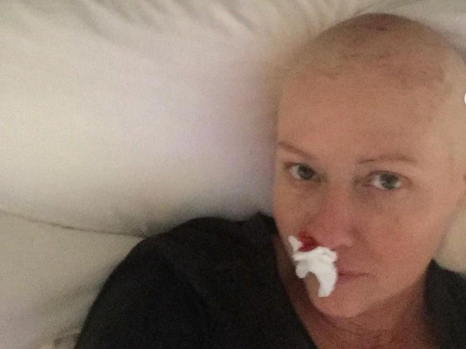 Shannen Doherty shares candid pictures of her cancer experiences (Shannen Doherty / @theshando / Instagram )