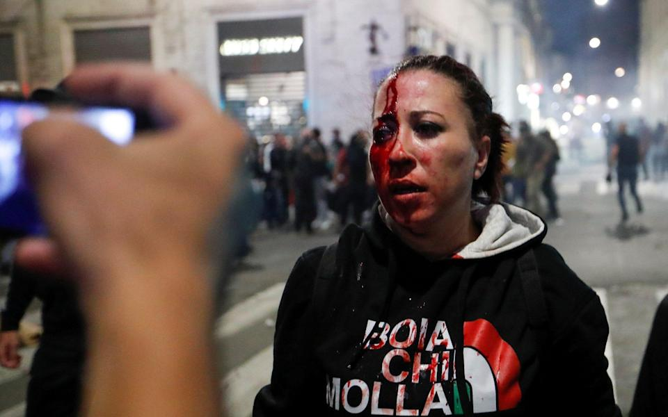 Pamela Testa, a protester, was injured in clashes that broke out in Rome at the weekend - Reuters