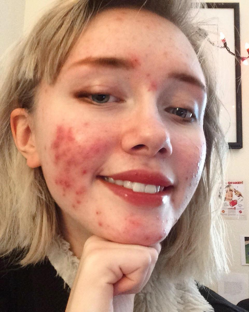 Hailey Wait has struggled with acne breakouts for years, but she doesn't hide behind her blemishes. (Photo courtesy of Hailey Wait)