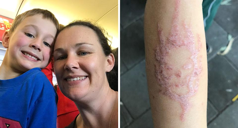 Pictured is Perth mum Louise Byrne and son Logan, who was left scarred by a temporary henna tattoo he got in Bali, Indonesia.