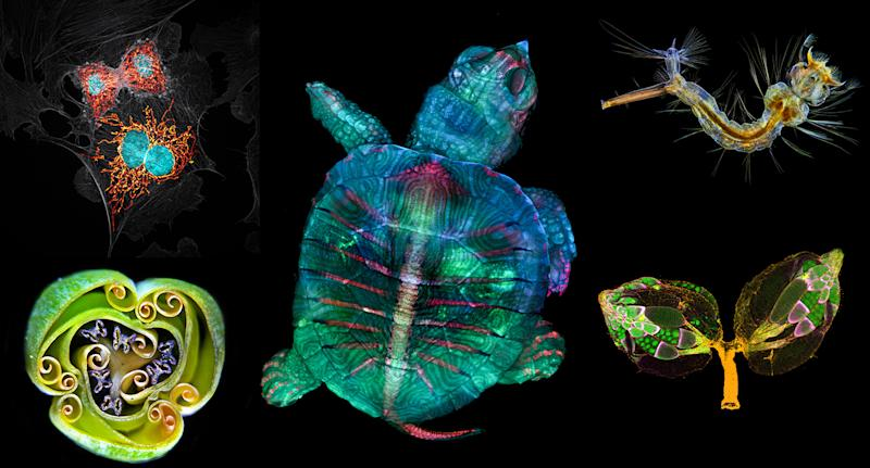 The winners of the 45th annual competition showcase a spectacular blend of science and artistry under the microscope. (Photo courtesy of Nikon)