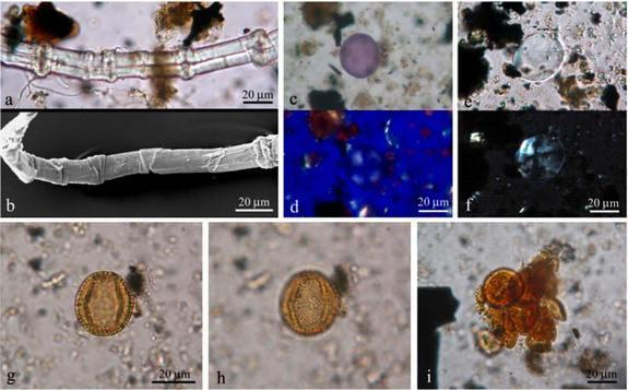 lant remains from the tablets found in the shipwreck: (A) Fiber of flax, (B) Fiber of flax, (C, D, E & F) Starch grain, (G & H) Pollen grain of olive (Olea europaea), (I) Group of pollen grains.