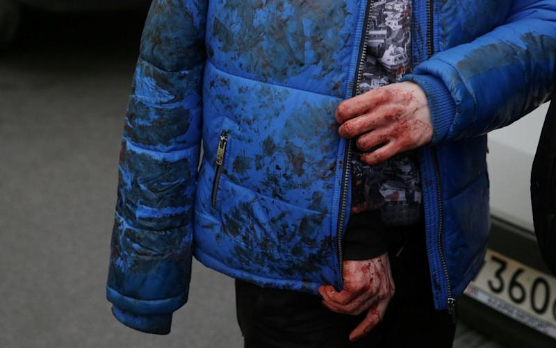 With bloodied hands, an iniured person walks outside Sennaya Metro station - Credit: Anton Vaganov/REUTERS