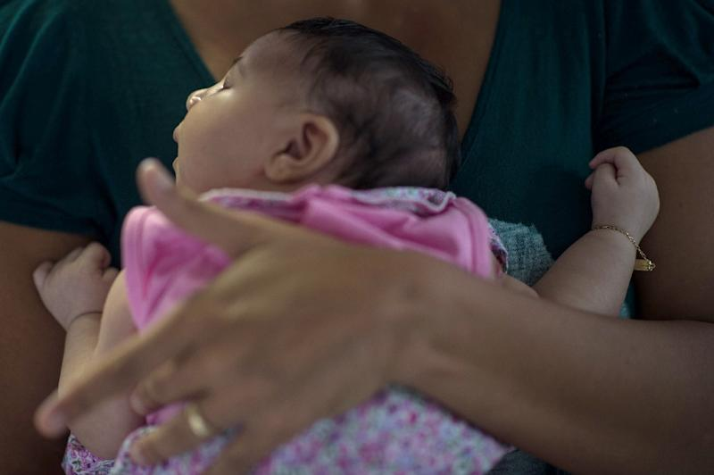 The brain-damaging disorder microcephaly, linked to the Zika virus, can lead to stillbirth or severely disabling birth defects (AFP Photo/Christophe Simon)