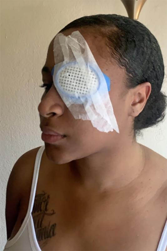 """Shantania Love was hit by what she believes was a rubber bullet at a protest in Oak Park, Calif. on May 29, permanently blinding her right eye.<span class=""""copyright"""">Courtesy Shantania Love</span>"""