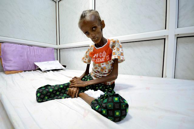 """<p>OCT. 24, 2017 – Saida Ahmed Baghili, 18, who is affected by severe malnutrition, sits on a bed at the al-Thawra hospital in the Red Sea port city of Hodeidah, Yemen. The heads of three U.N. agencies urged the Saudi-led military coalition on Thursday to lift its blockade of Yemen, warning that """"untold thousands"""" would die if it stayed in place. (Photo: Abduljabbar Zeyad//Reuters) </p>"""