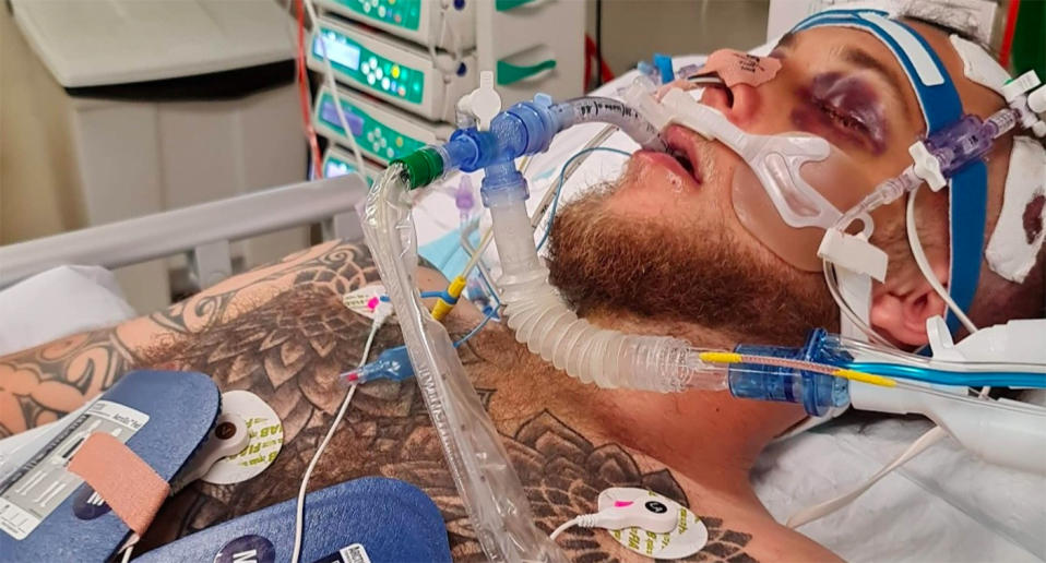 Brandon Orr lies in a hospital bed in a Perth hospital after being bashed outside a pub in Perth.