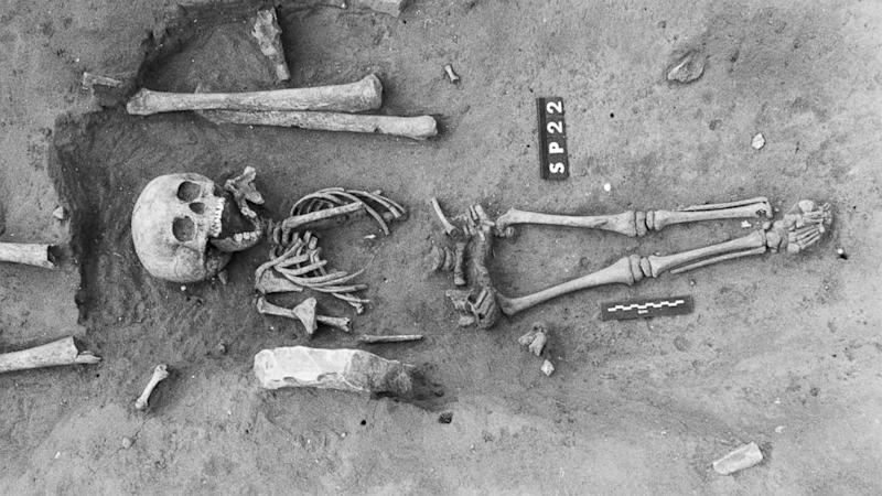 Oldest Case of Down Syndrome Discovered in 1,500-Year-Old Skeleton