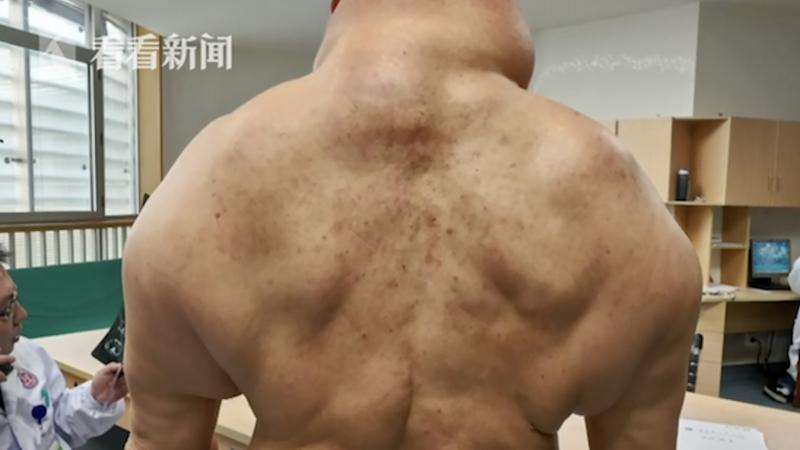 Heavy-drinking Chinese man contracts rare skin disease