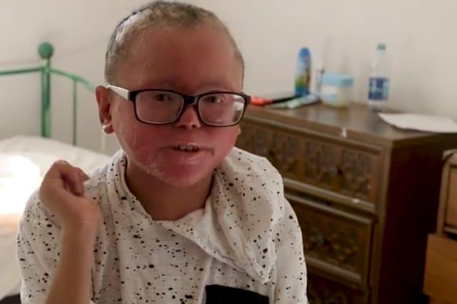 The teen whose skin grows too fast