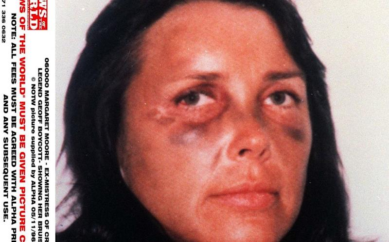 Margaret Moore with a bruised face in 1998. Sir Geoffrey Boycott was convicted of assaulting her - News of the World