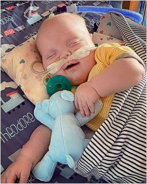 PHOTO: Theodore 'Teddy' Nelson has spent 185 days in the hospital. On Nov. 13, the 6-month-old had his second open heart surgery and on Feb. 6, Teddy finally smirked for his mom and dad. (Alexandria Nelson)