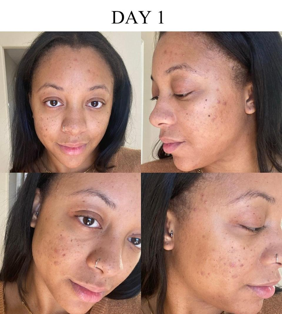 <p>I'm not sure what magical potion I thought K-beauty products were made with, but my expectation weren't just a <em>little</em> high. I mean, the 10-step skin-care routine is hyped up as the best system to follow for skin-care enthusiasts.</p> <p>Prior to day one of my experiment, I was at a place where the appearance of my skin was beginning to weigh on me. A few months before, I had finally gotten what felt like several steps closer to the perfect cleanser-meets-vitamin C-meets-moisturizer combination. After falling out of sync with that routine, however, my skin seemed to relapse into a worse state than where it began. (Not to mention it was still recovering from failed run-ins with a few other moisturizers and serums.) </p> <p>My breakouts were minimal, so my main hope for this experiment was tackling my dark spots from past breakouts, along with doing away with my texture you can see in my photos. I was a bit unclear on the role each of the ahead products were meant to play in this process, but I certainly got a better idea along the way.</p>