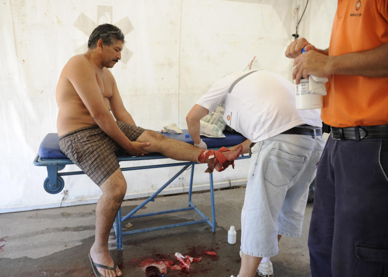 """A man is treated after he was bit by a palometa, a type of piranha, while wading in the Parana River in Rosario, Argentina, Wednesday, Dec. 25, 2013. Lifeguards director Federico Cornier said Thursday that thousands of bathers were cooling off from 100 degree temperatures in the Parana River on Wednesday when bathers suddenly came to them complaining of bite marks on their hands and feet. He blamed the attack on palometas, """"a type of piranha, big, voracious and with sharp teeth that can really bite."""" (AP Photo/La Capital, Silvina Salinas)"""