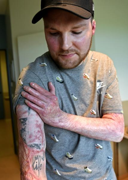 The only thing left from a tattoo Franck had on his arm is the word 'life'