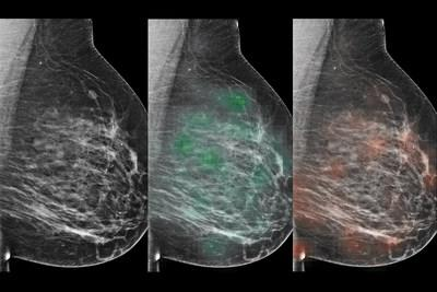 "An AI tool learned to predict which lesions were likely malignant (red ""heatmap""), with potential to aid radiologists in the diagnosis of breast cancer."