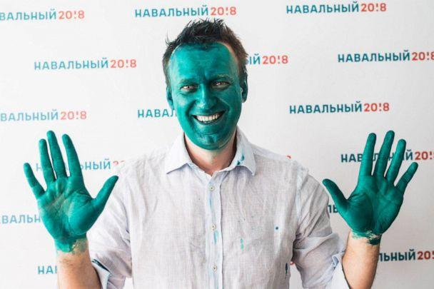 PHOTO: Alexei Navalny, founder of the Anti Corruption Foundation, smiles after a press conference on the opening of a presidential election campaign office in Barnaul, Russia, March 20, 2017, after assailants threw green dye at him. (Evgeny Feldman/TASS/ZUMAPRESS.com via Newscom, FILE)